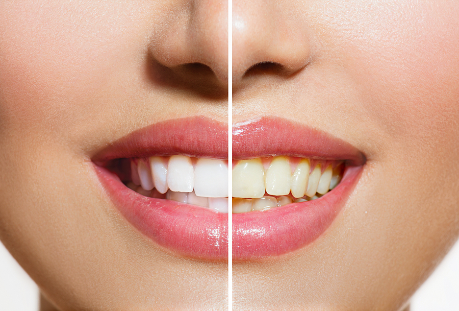 Albany Teeth Whitening