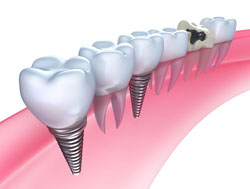 Several Dental Implants